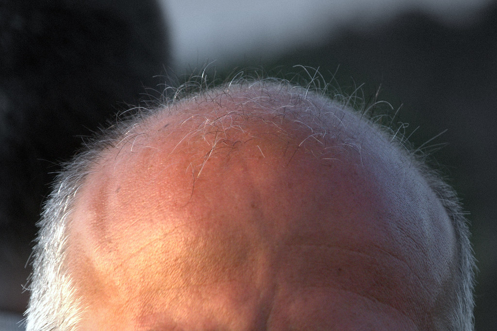 Moon Scape of Bald Head