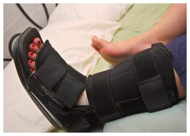 ankle sprain boot 3