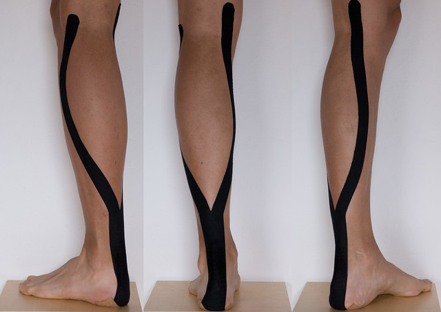 Kinesio tape - against achilles tendon problems - By: tö ...