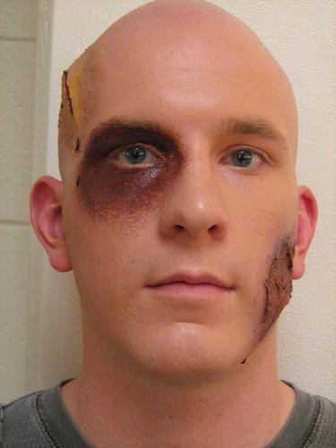Does plan? Facial scar makeup all