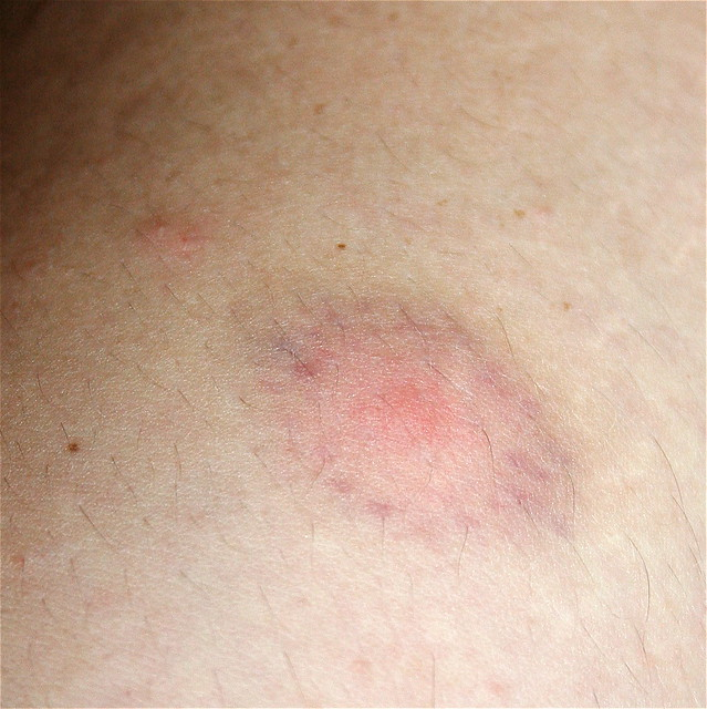 Spider Bite Bruise http://www.flickr.com/photos/chrisheuer/2835621330/