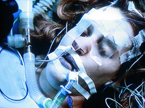 DANA SCULLY WAS IN A COMA