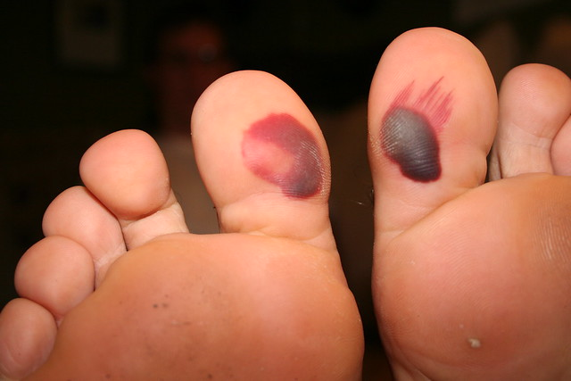 Kung Fu Blood Blisters Closeup Flickr Photo Sharing