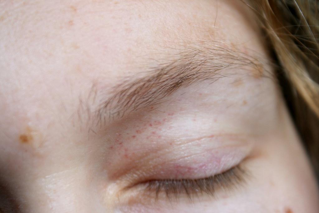 Little Red Spots Under My Eyes ✓ Nangguk Sticker