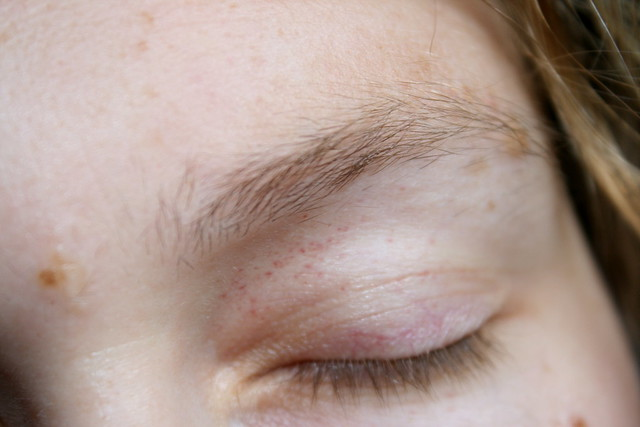 red spots on eyelids
