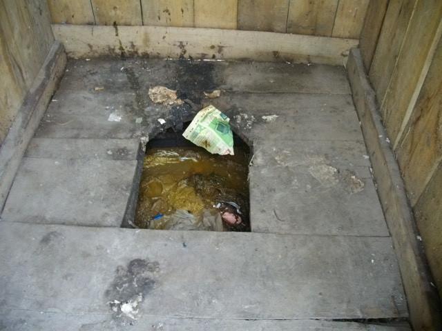 Human waste disposal anus