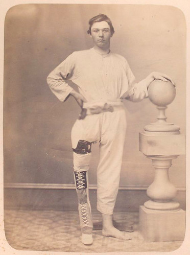 [Clothed man stands facing camera, shortened right leg encas...