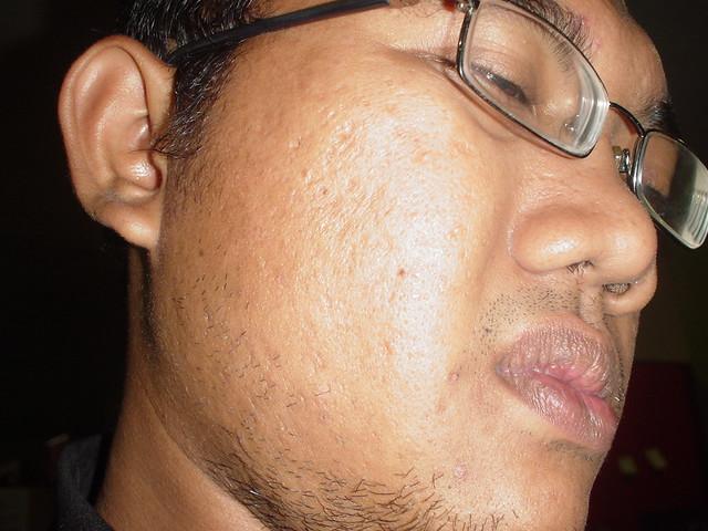 View Original Image