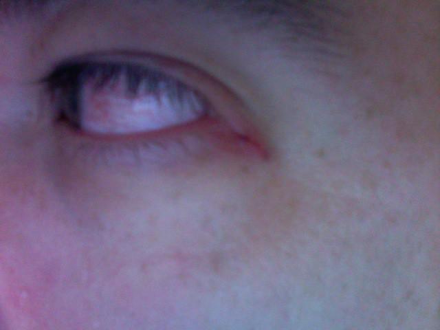 Cat Eye Scratch Symptoms