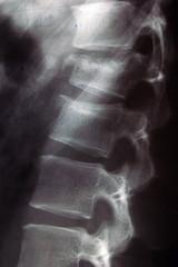 Huesos de la columna vertebral: ¿Cuántos hay? ¿Cuáles son?