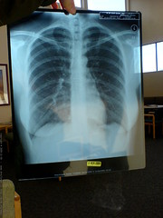 HIPAA compliant crappy photo of rachel's chest x ray…