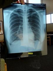 HIPAA compliant crappy photo of rachel's chest x ray…