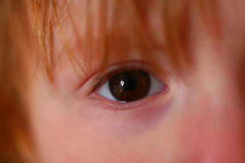 childs eye