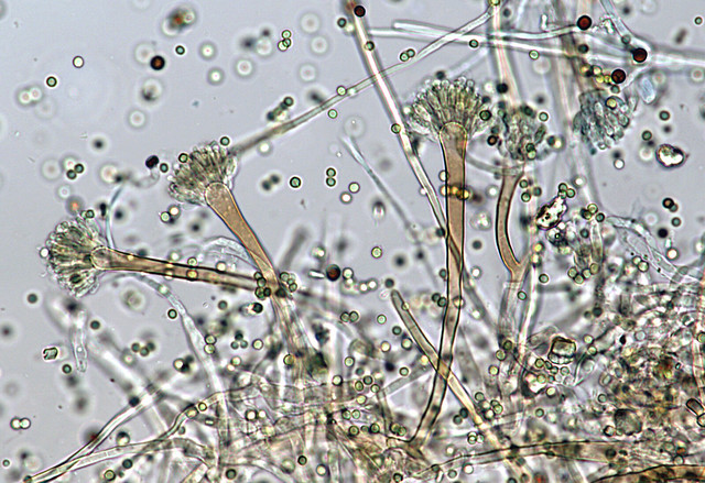 Fungi Under Microscope