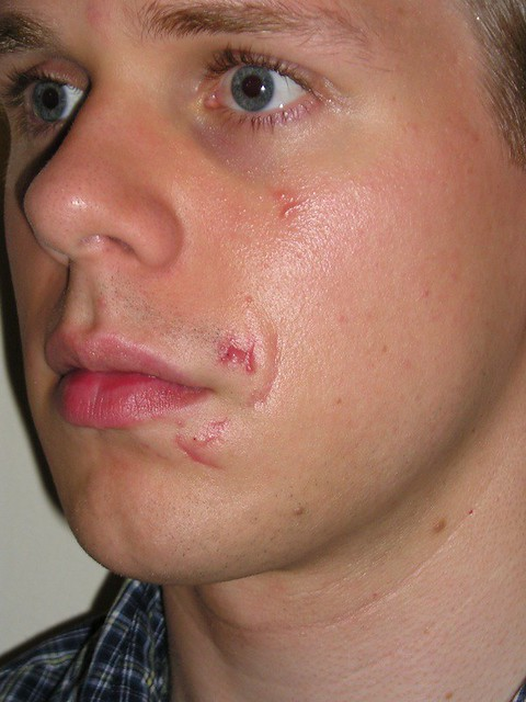 how to heal open cuts on face