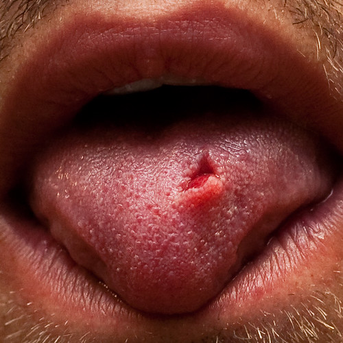 on my tongue i have these weird sores on my tongue that sort of look