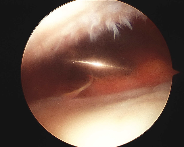 Knee Replacement Surgery Scar Tissue http://www.flickr.com/photos/usc2000/3189533323/