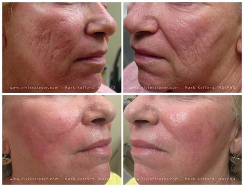 best skin serum for wrinkles