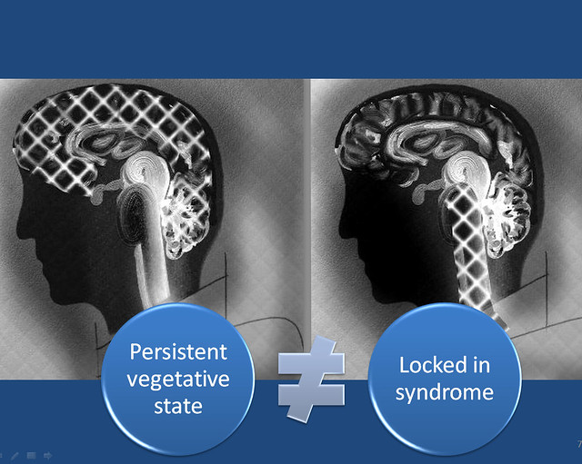 locked in syndrome and pvs essay Appendix b: borthwick's 'persistent vegetative state a syndrome in search of a name at the margin between 'locked-in syndrome' and pvs.