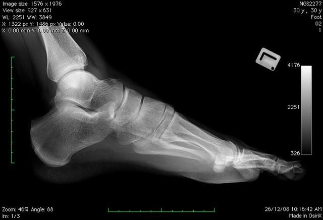 Bones Of The Foot Xray