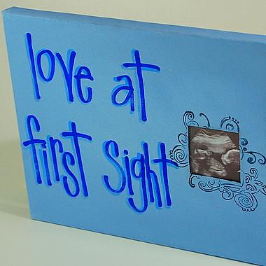 4D Ultrasound 3D Ultrasound, Prenatal Peek