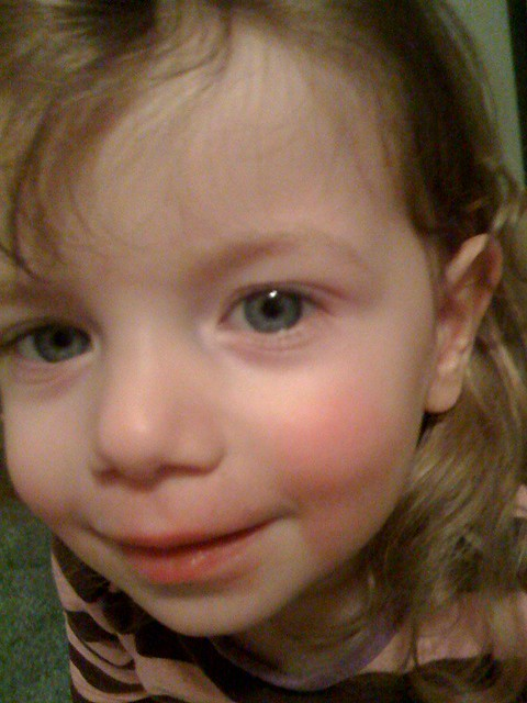 Fifth Disease Pictures, Images & Photos | Photobucket