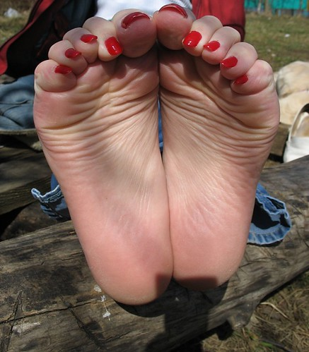 soles and toenails
