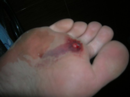 Foot injury from stepping on a nail