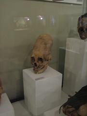 Crâne déformé- musée d'Ica