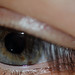 Small photo of Eye