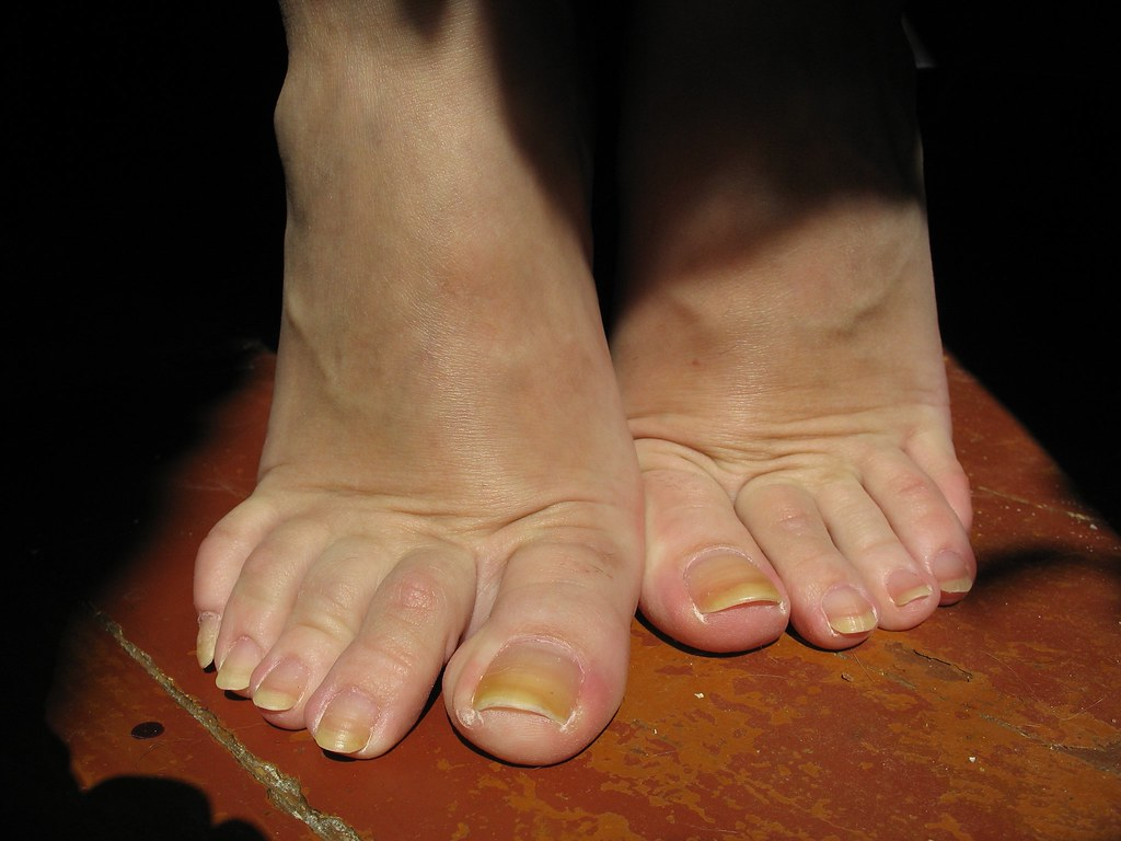 natural long toe-nails - a photo on Flickriver