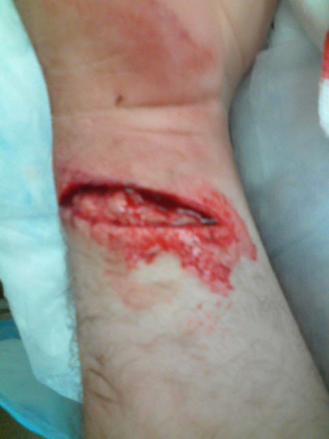 suicide by cutting the radial artery of the wrist 17102011 advantages of radial artery catheterization any catheter placement into a blood vessel is associated with a risk of bleeding after removal of the.
