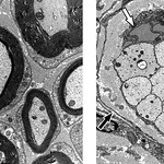 Electron micrographs of glial cells in wild type and Sox10 mutant mice