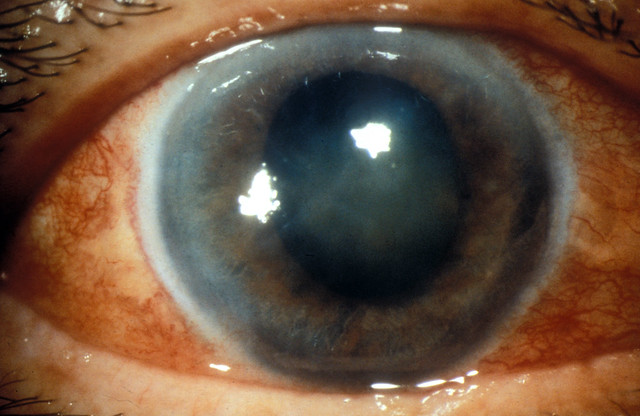 Acute glaucoma, red eye.