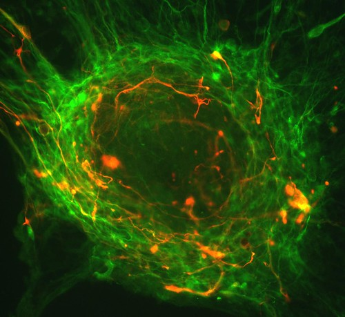 Human embryonic stem cells differentiating into neurons