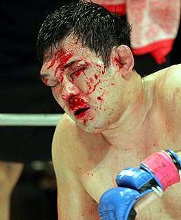UFC s Biggest Bloodbaths - Bodybuilding com Forums
