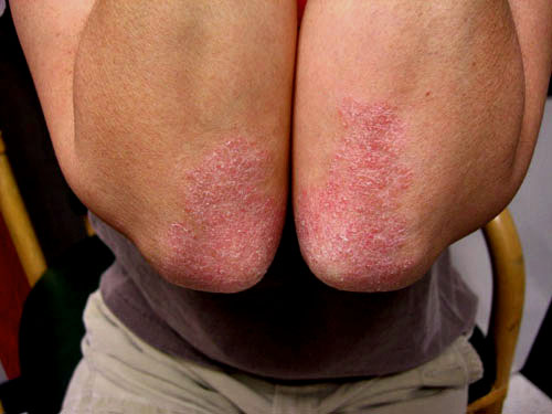 Plaque Psoriasis Before