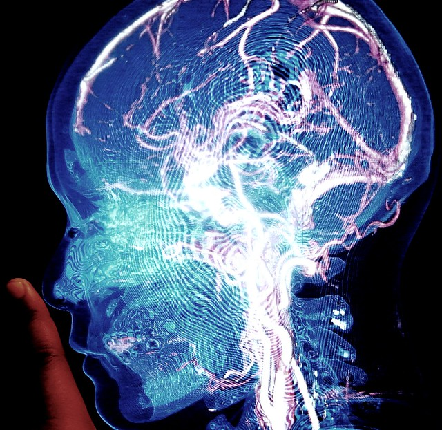 the brain electric - a gallery on Flickr
