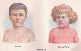 Measles and Scarlet Fever