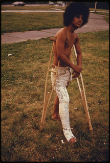 Young Man with His Leg in a Cast in Hiland Park of Brooklyn New York City ... 07/1974