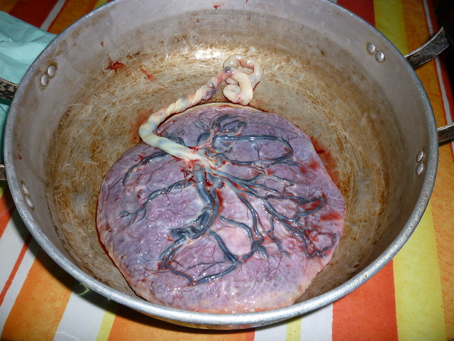 Faerie >> placenta smoothie 2 | Flickr - Photo Sharing!
