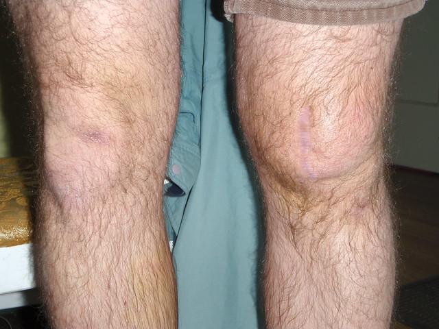how to avoid dislocated kneecap