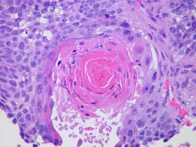 Squamous cell carcinoma  Case 113