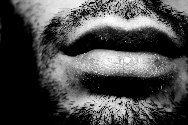 Labios rotos blanco y negro flickr photo sharing for Fotomural blanco y negro