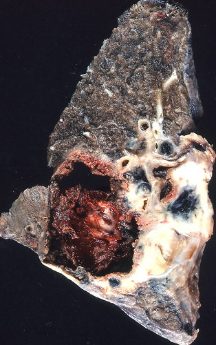 Carcinoma, type unspecified