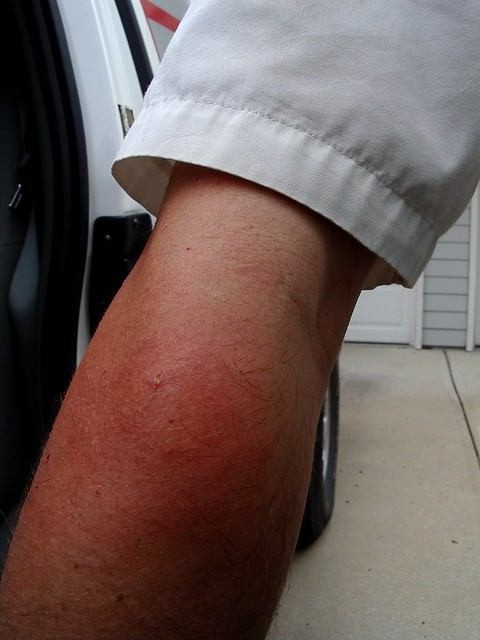paper wasp sting reaction - photo #8