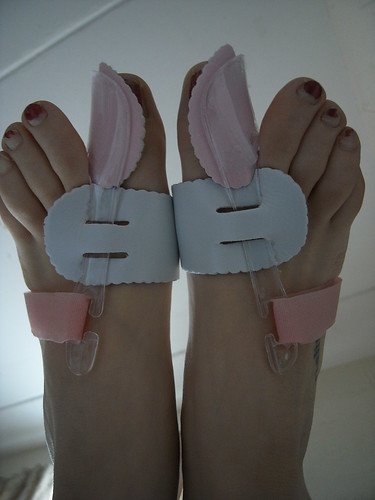 pointe shoes bunions