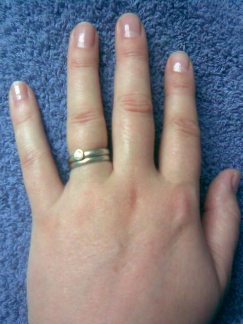 2009_04_23 Swollen pregnancy hands