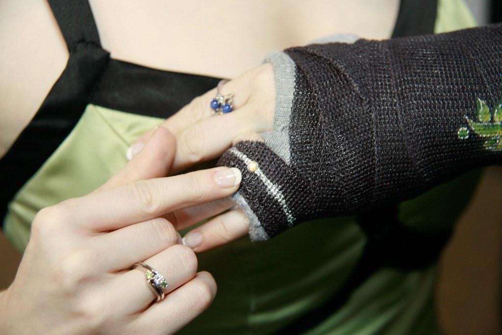 Temporary ring on broken hand