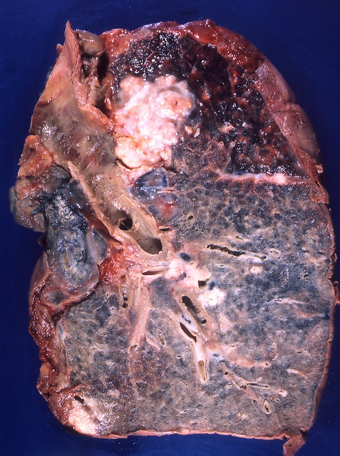 Image Result For Lung Cancer Lab